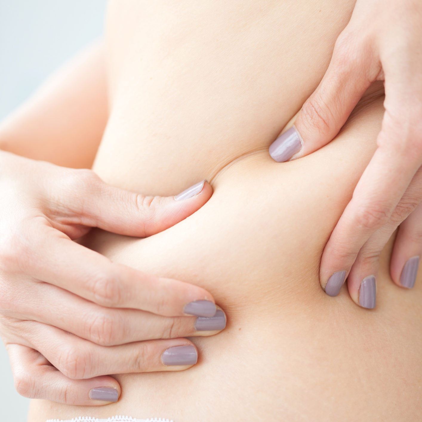 Localized fat in woman back
